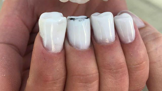 A person who has nails that are shaped to look like molars.